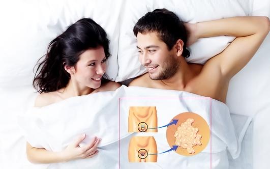 ВПЧ лечение
